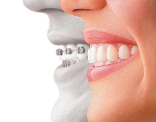 Invisalign_studio_dentistico_brindisi